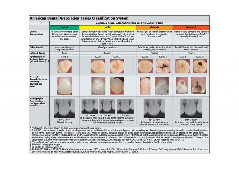 American Dental Association caries classification system.